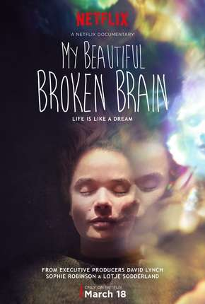 My Beautiful Broken Brain Filme Torrent Download